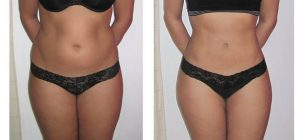 non-surgical liposuction Glasgow